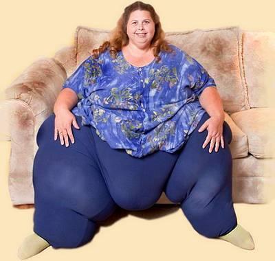 Человек страдает ожирениеи